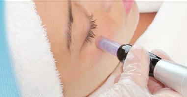 Behandeling met de Philings pen is een effectieve manier om de huid in de diepte te vernieuwen en verfraaien zonder de opperhuid te beschadigingen.